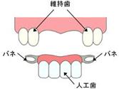ブリッジや部分入れ歯の場合