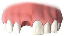 失った歯をそのままにしている場合